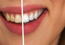 Rendere i denti più bianchi